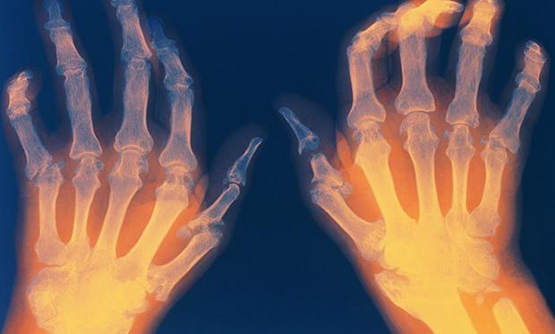 Il ruolo della dieta nell'artrite reumatoide