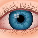 Il ruolo dei grassi essenziali omega 3 nella sindrome dell'occhio secco