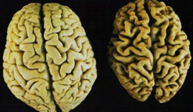 Come ringiovanire il cervello di 5 anni con la dieta mediterranea