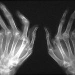Che cibi evitare se soffrite di artrite reumatoide