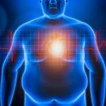 Obesità e Covid-19: qual è la relazione?